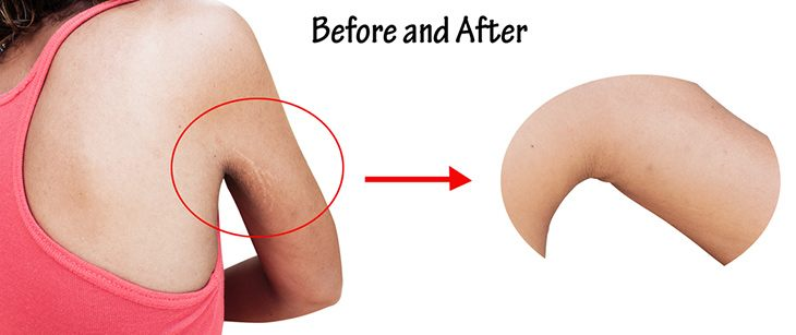 before and after stretch mark and wrinkle of armpit