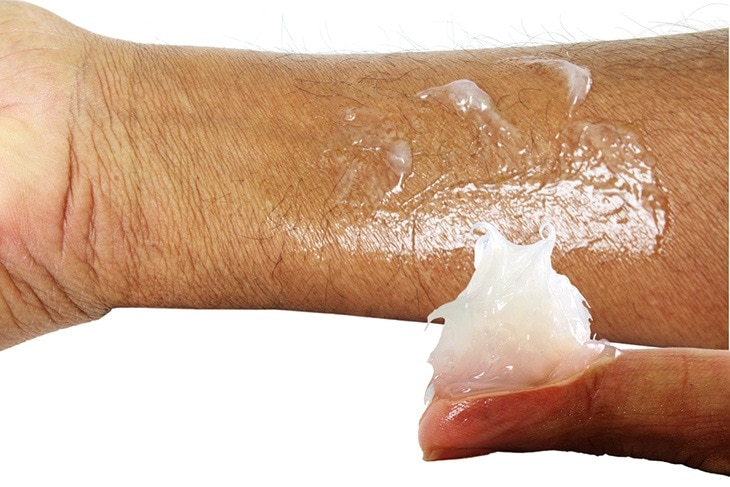 use petroleum Jelly for sunburns