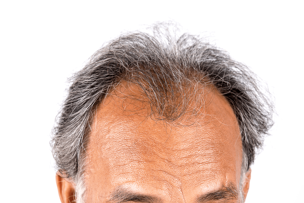 Hair Loss Could Be Genetic
